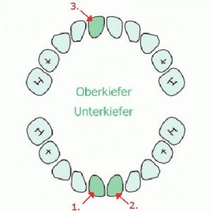 Meine Zähne - Stand 09.11.2011